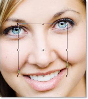 Cirurgia plastica no nariz preço, rinoplastia