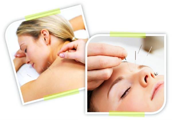 acupuntura13032011