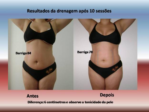 1309049686_30504763_3-Drenagem-linfatica-modeladora-Salvador