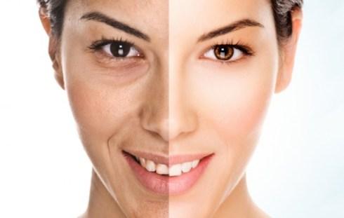 Dicas para retardar o envelhecimento da pele4