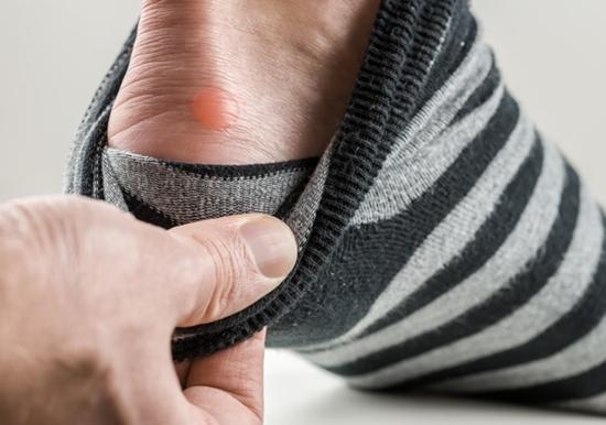 Produtos para evitar bolhas nos pés